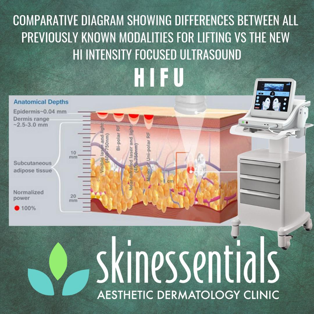 HIFU – Skin Essentials Aesthetic Dermatology Clinic